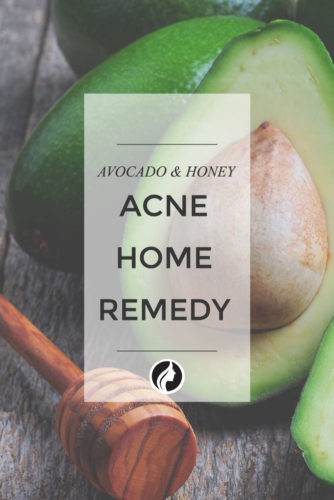 14 Easy Home Acne Remedies for Beautiful Skin