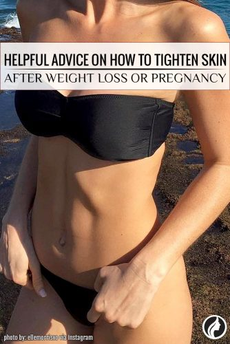 8 Easy Ways How to Tighten Skin after Weight Loss or Pregnancy