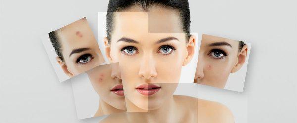 10 Best DIY Facial Masks For Acne Prone Skin