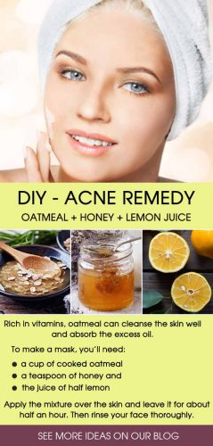 Best Natural Remedies for Acne Treatment