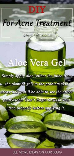 Aloe For Acne Treatment