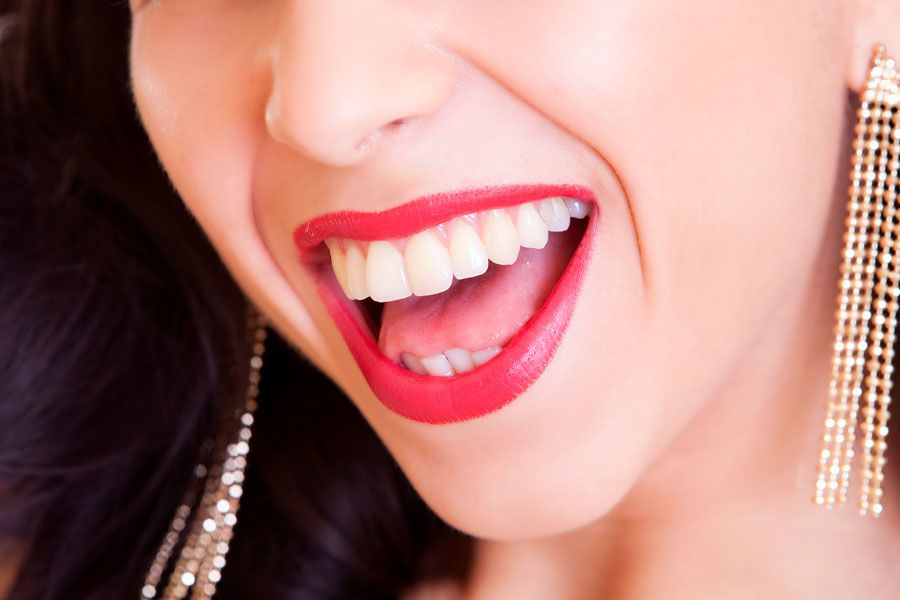 Best Teeth Whitening Products For A Stunning Smile