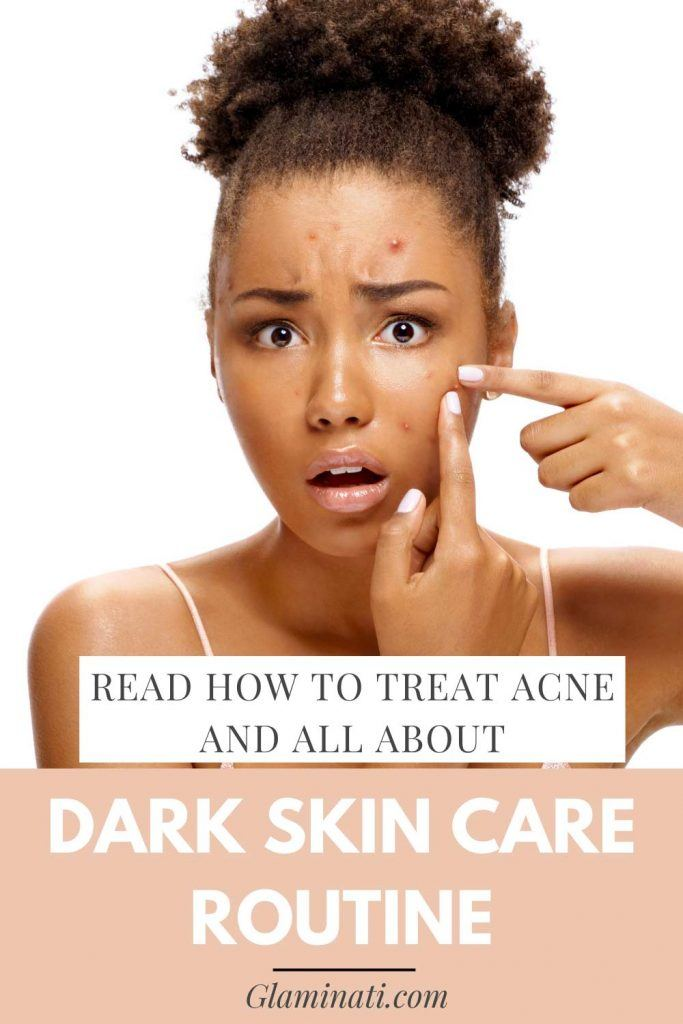 Acne Treatment is Important